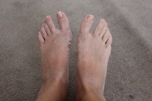 Claire's feet after screws 1
