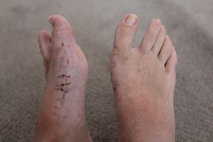 Claire's feet after screws
