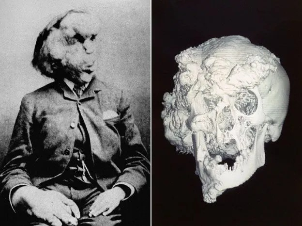 Le crâne de Joseph Merrick