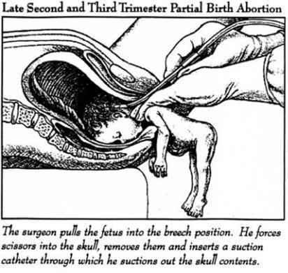 partial-birth abortion
