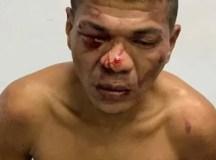 """""""Galo Cego"""" depois de assalto da uma de galo de rixa para cima da PM, e é preso no Alvorada"""