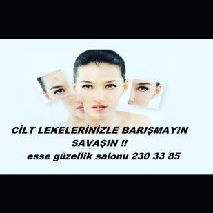 #leke #leketedavisi ##permanentmakeup #mikropigmentasyon #kalıcımakyaj #micropigmentation