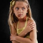 Τι θα συνέβαινε αν η λεκτική και ψυχολογική βία, άφηνε τα σημάδια που αφήνει η σωματική;