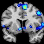Επιστήμονες βρίσκουν ότι η θρησκεία πυροδοτεί την ίδια περιοχή του εγκεφάλου, όπως το σεξ, τα ναρκωτικά και η αγάπη