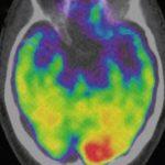 Η αμυγδαλή του εγκεφάλου έδειξε πως το χρόνιο στρες αυξάνει τον κίνδυνο για έμφραγμα