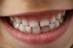 A child's smile showing teeth