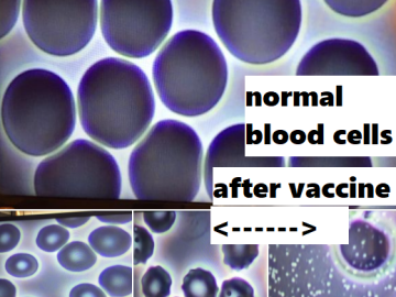 vaccine-vaccination-side-effect-blood-cells-shape-structure-white-dots-normal-microscope-examine-healthy-pfizer-moderna-mrna-viral-johnson-doctor-report-recommended-warning