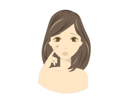 顔に肝斑のシミが出来ている女性のイラスト