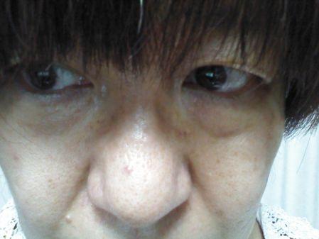 毛穴のブツブツが気になる女性の写真