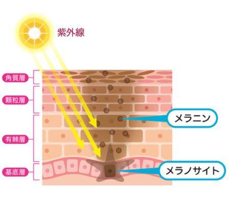 シミが出来る仕組みを皮膚の断面で説明している図