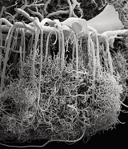 6-brains-network-of-blood-vessels-6