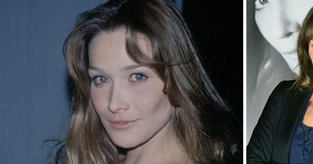 Лицо Карлы Бруни сильно изменилось после неудачных инъекций