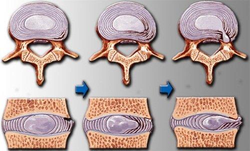 preparate pentru creier în osteochondroză