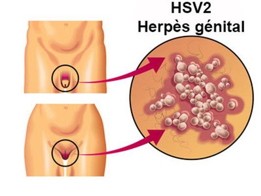 Voici une plante pour soigner l'herpès et le VIH SIDA