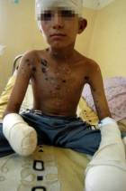 Ahmed Kamel, 12-year old Iraqi, victim of US cluster bomb