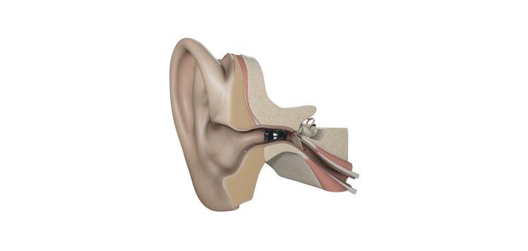 audifono-soundlens