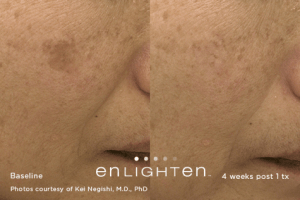 laser skin toning before and after