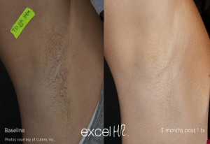 laser hair reduction before and after
