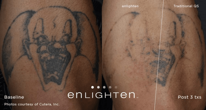 Laser tattoo removal what you should know anu medical spa for Laser hair removal over tattoo