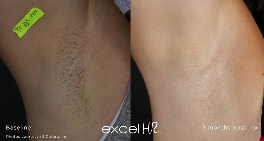 Laser hair removal on a leg.