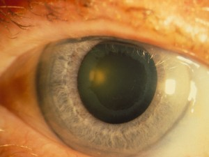 ps_140925_glaucoma_eye_800x600