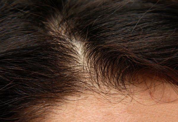 びまん性脱毛症の生え際