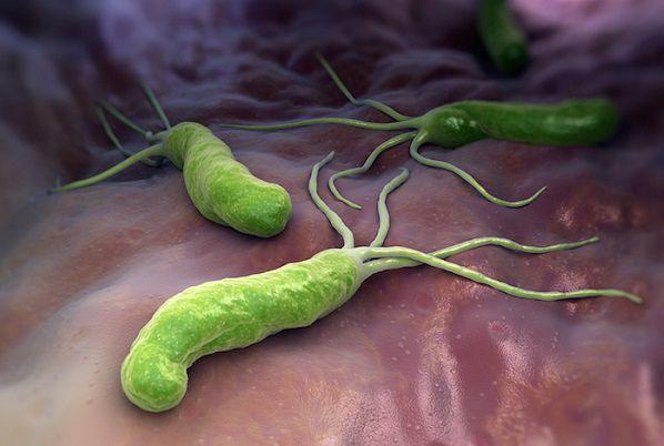 ピロリ菌を駆除