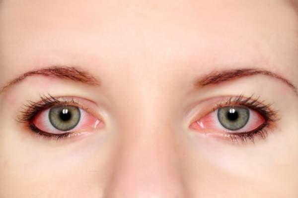 花粉症で目が腫れる