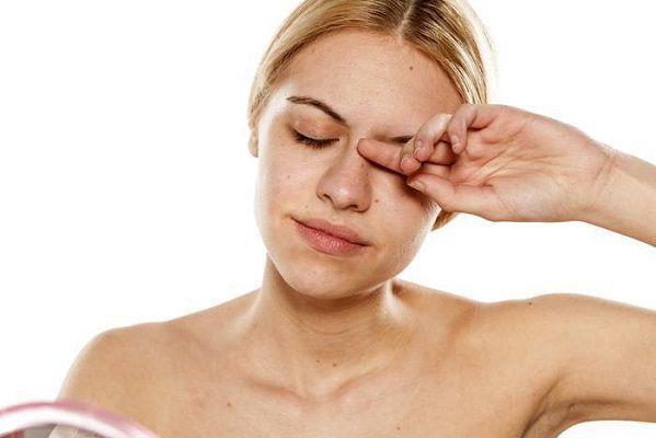 花粉症皮膚炎