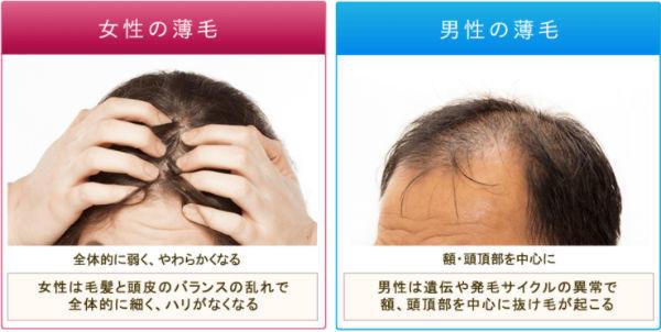 薄毛の原因は男女で違う