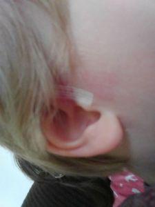 Cut on L's ear