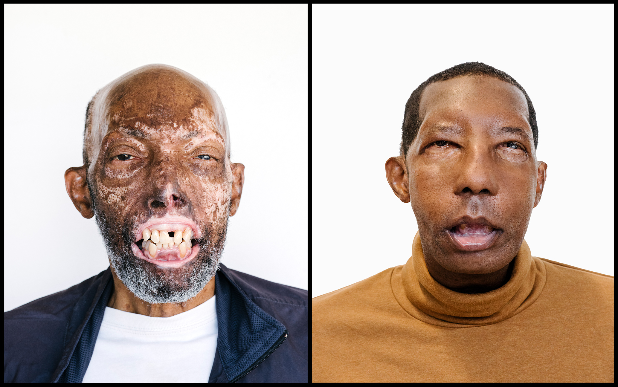 Meet The First African American Face Transplant Recipient