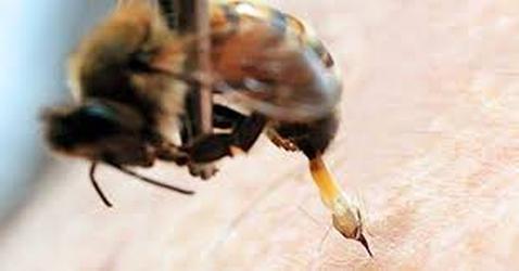 picadura lanczos3 - Muerta por picaduras de abeja 200318 - El Apicultor Español, Actitud y Aptitud Apícola