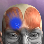 Muscle Trigger Point Anatomy