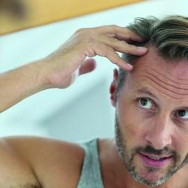 Haarausfall? Das muss nicht sein! Egal ob Mann oder Frau
