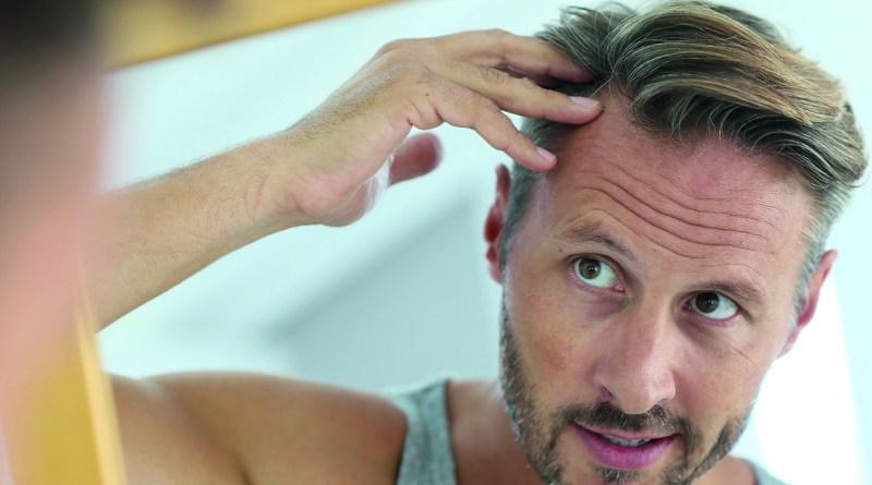 dünnes Haar - Mann mit Haarausfall