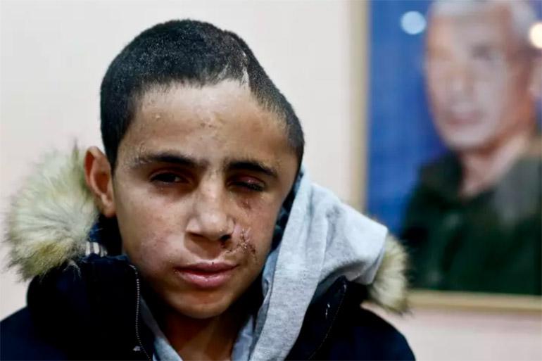Propaganda Israëlische leger: Muhammad al-Tamimi kreeg geen kogel in hoofd, maar viel van fiets – The Rights Forum