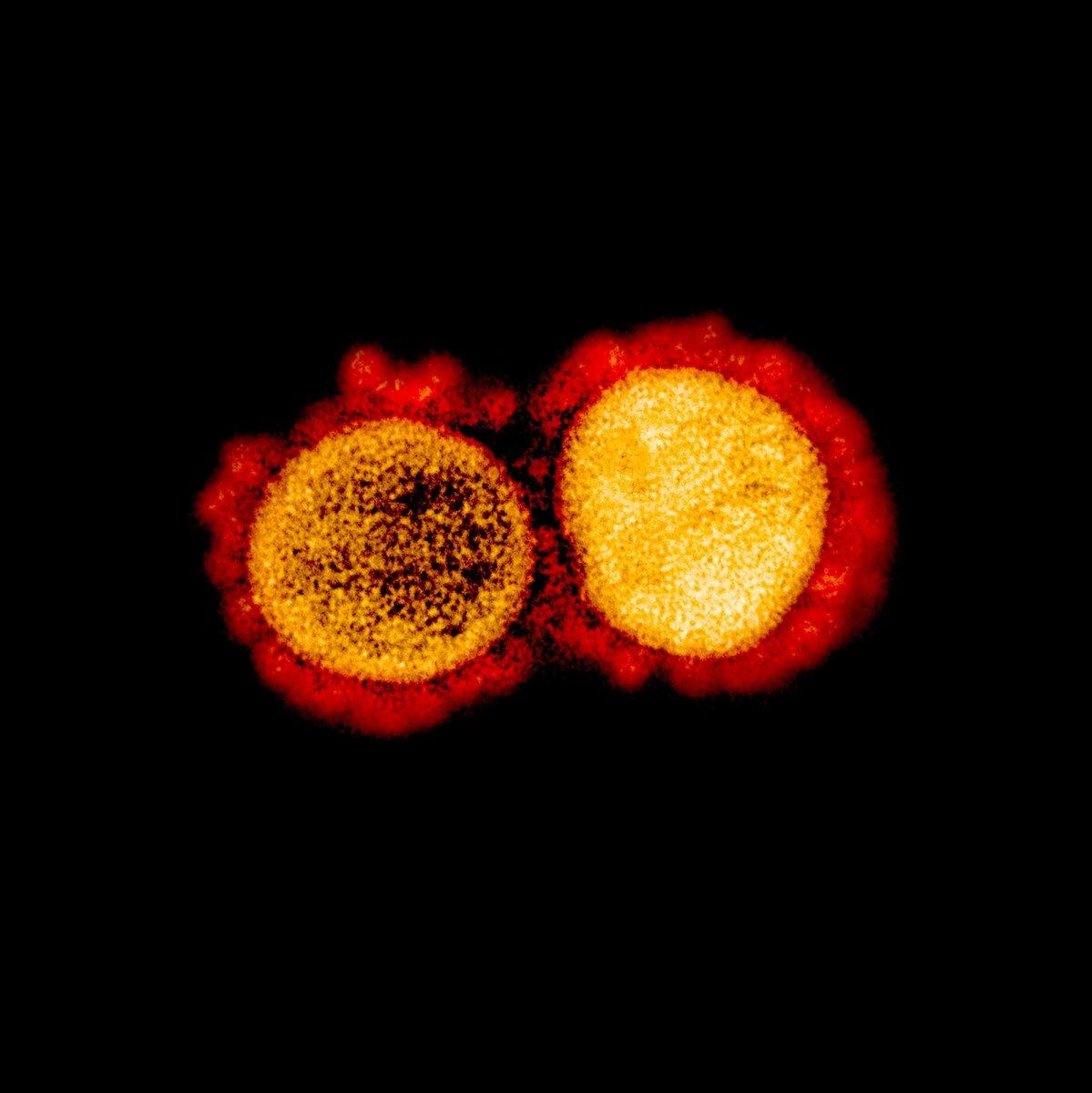 20-50-%-der-bevolkerung-haben-eine-teilimmunitat-gegenuber-covid-19