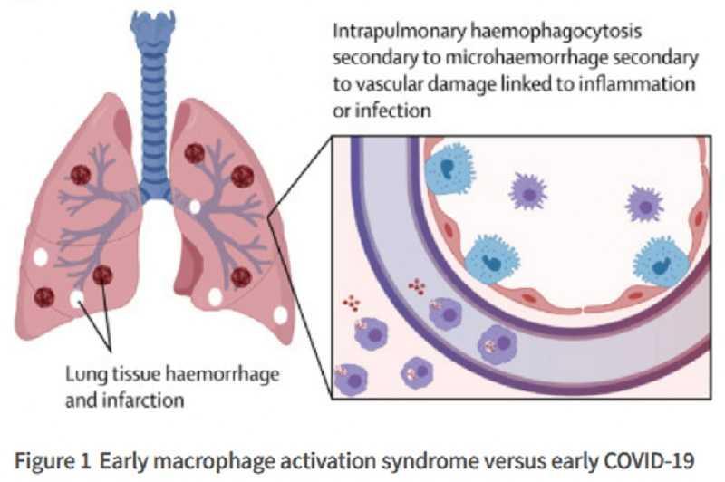 cardioloog-waarschuwt-voor-covid-19-vaccins-fraude-en-hyper-inflammatoire-immuunreacties-veroorzaakt-door-de-injecties-–-frontnieuws