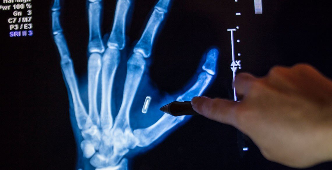 pentagon-entwickelt-implantierten-chip-gegen-covid-19-|-anti-spiegel
