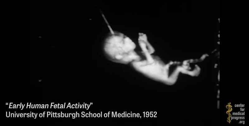 kijk:-universiteit-experimenteert-met-lichaamsdelen-van-geaborteerde-baby's-–-frontnieuws