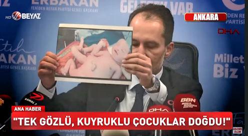 turkse-tv-toont-gruwelijke-beelden-misvormde-baby's-door-pfizer-en-moderna-vaccins