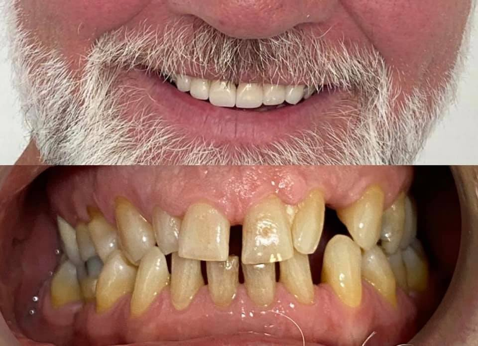 Dental Implant Before and After Photo by Dr. German Ariza in Bogota, Colombia
