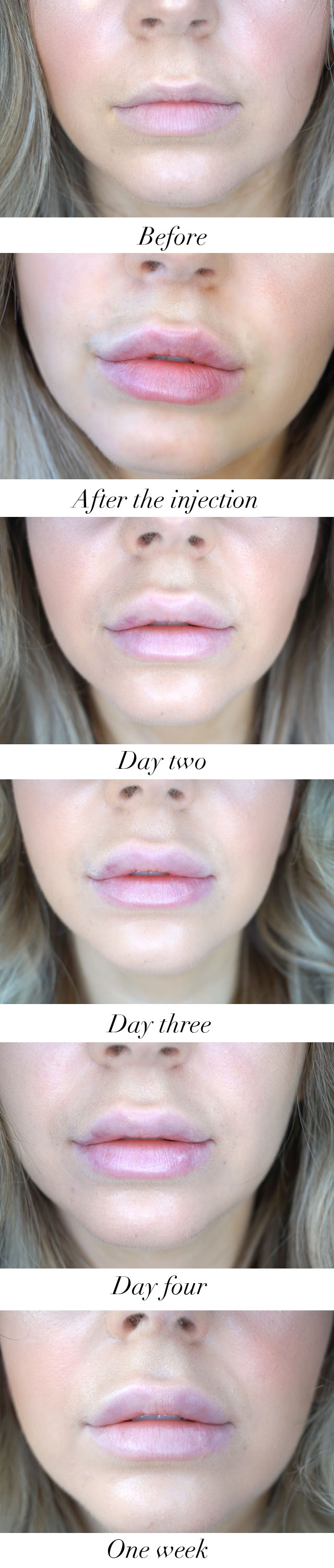 Lip fillers before and after photos