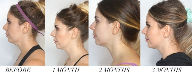 Before and after three month results for CoolSculpting double chin