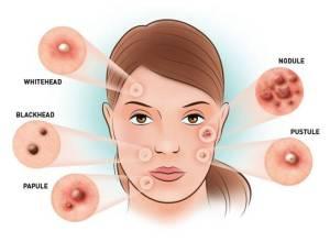 penyebab gejala dan pengobatan jerawat