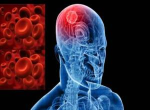 pengobatan penyakit stroke iskemik