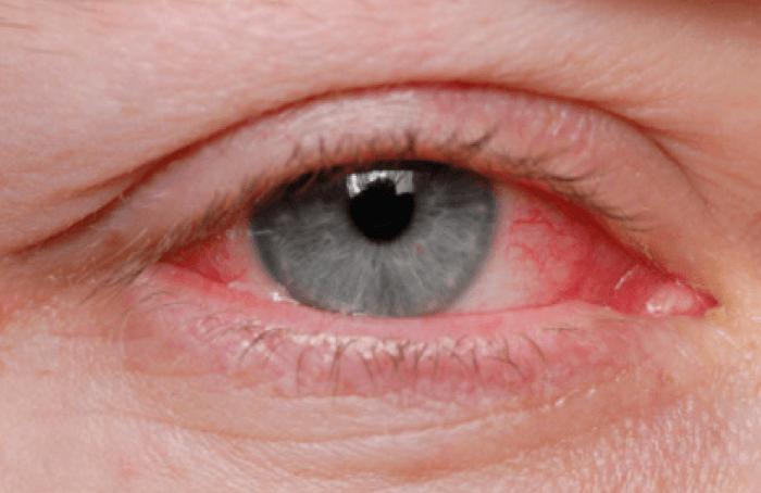 Wat kan u doen tegen droge ogen?