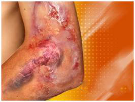 Burn Injury Some Natural And Herbal Home Remedies For Burns