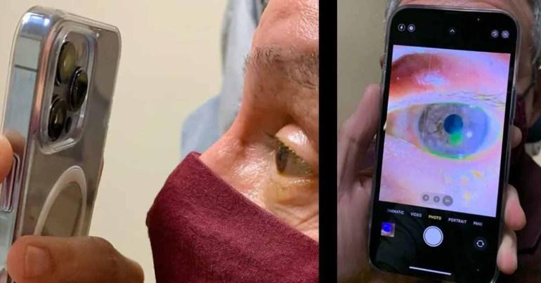 Офтальмолог с iPhone 13 отвечает на критику
